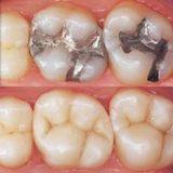 ابتكارصینی  مذهل قد يسجل نهاية حشوات الأسنان!