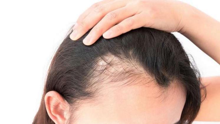للذین یعانون من تساقط الشعر،أفضل أطعمة في الفطور لتعزيز نمو الشعر!