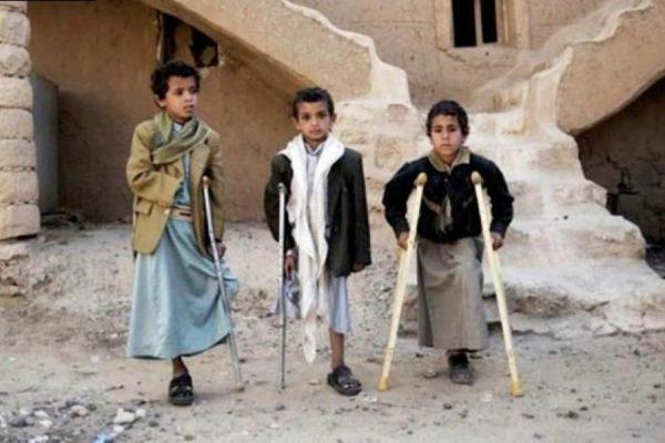 في اليمن ذبحت طفولة الإنسانية .؟!